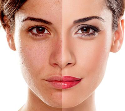 2 tratament cosmetic tratament gerovital peeling facial tratament acnee masca fata salon Campina coafor